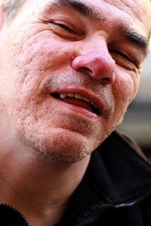 HRVOJE NA LJETNIM GUMAMA: Grozno i strašno - mladi invalidi u staračkim domovima