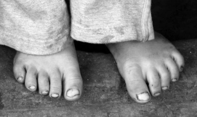 Siromaštvo